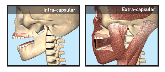Intra and Extra Capsular