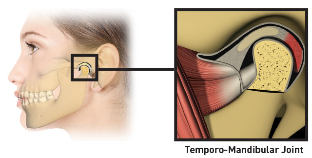 image of the tmj